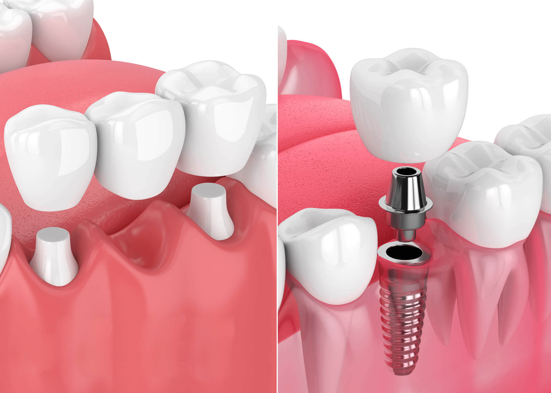 dental implants rather than bridges