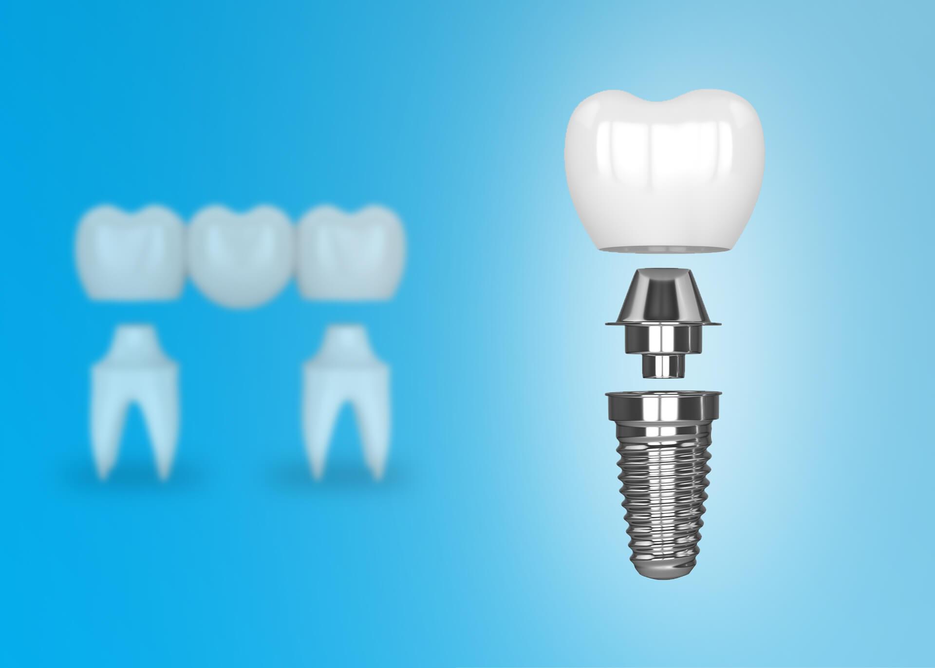 get a dental implant