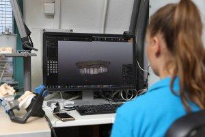Oral scan examination