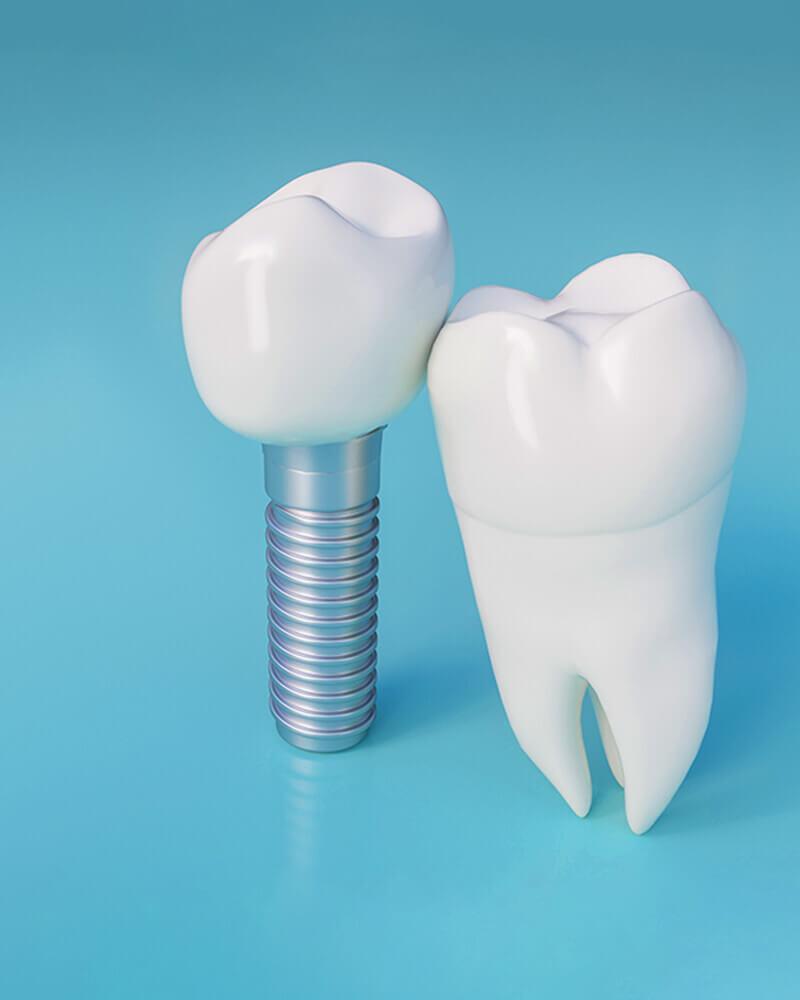 dental technicians 1