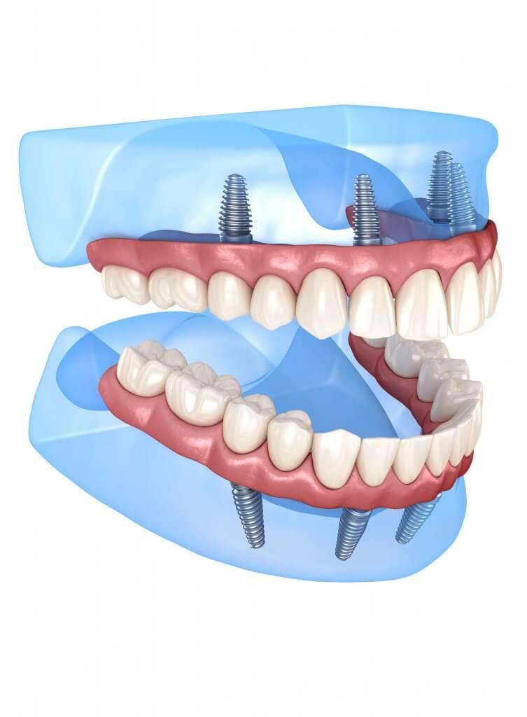 modern dentistry model