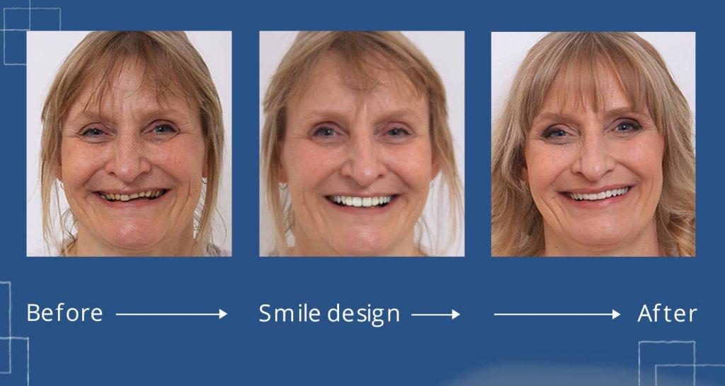before after smile design