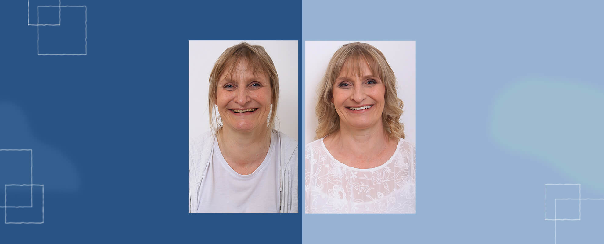 before after smile makeover