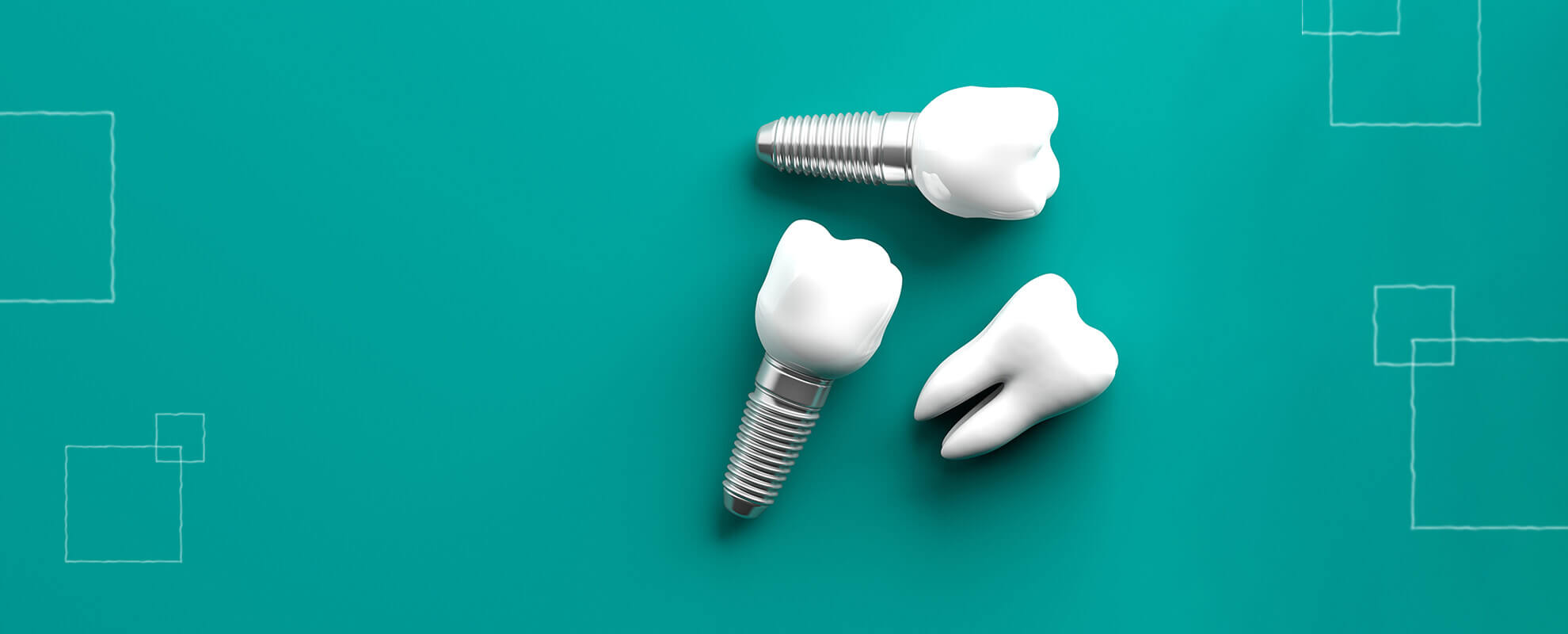 misconceptions dental implants